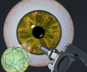 UCLA researchers develop adhesive gel that helps the eye heal itself